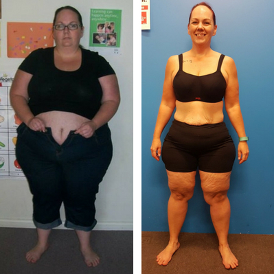 Mel Before And After Weight Loss Surgery Wollongong Body